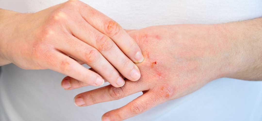Mengenali Gejala Alergi Panas dan Cara Mencegahnya